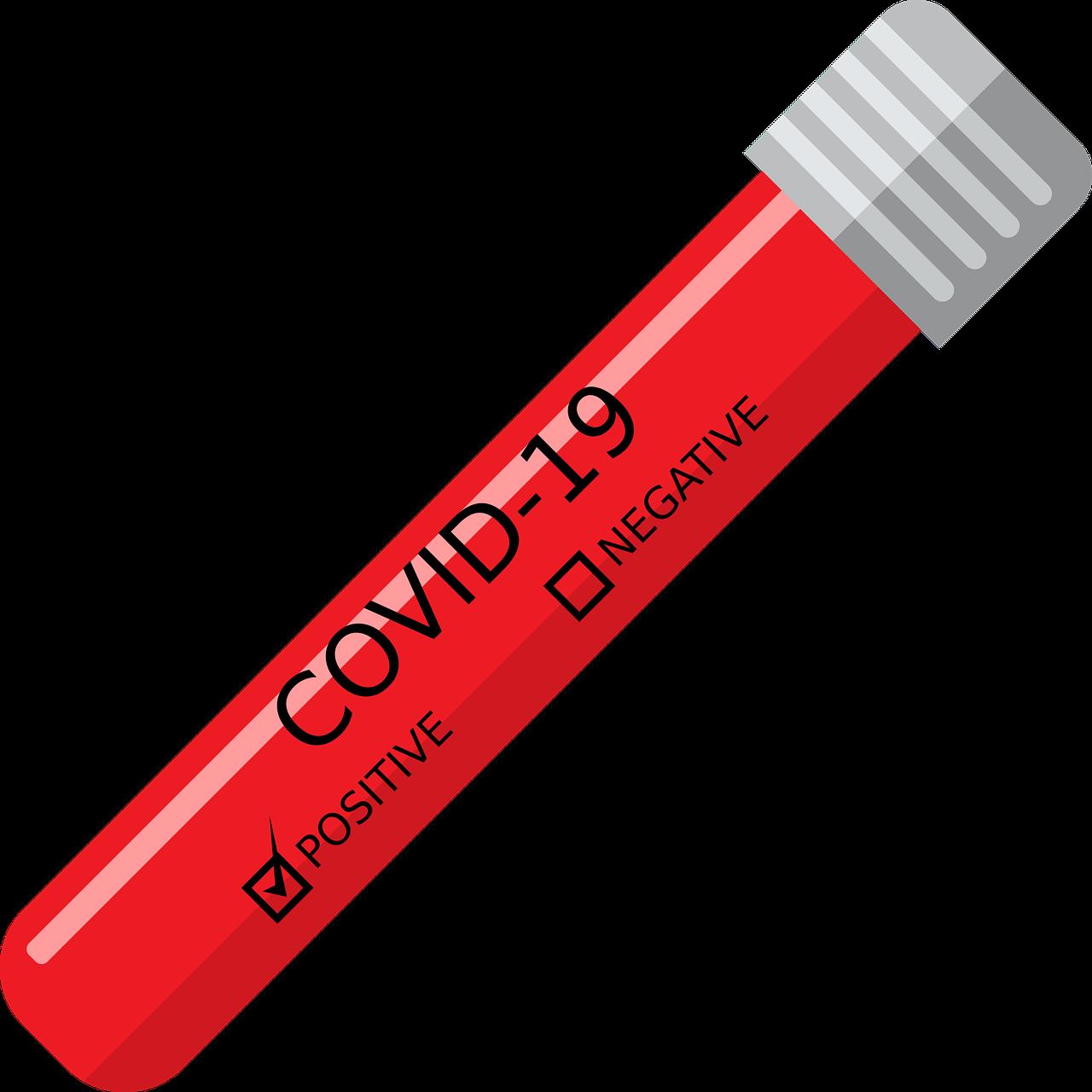 covid 19 antibody testing employees california